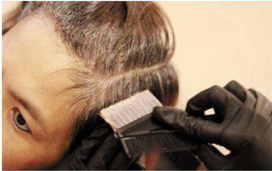 每月染发患肝硬化   专家怎么说?