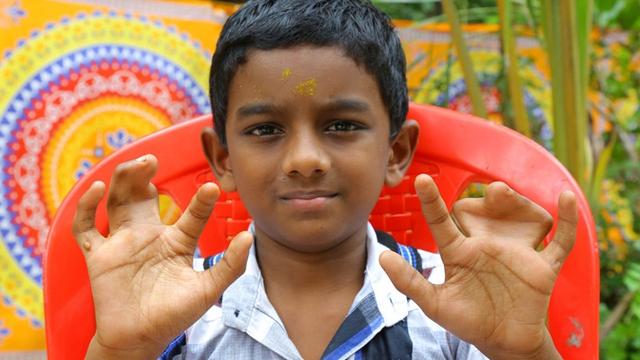 印度一家庭140人天生并指 什么原因?