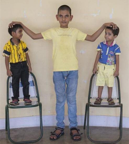 亚洲最高女子所生超大体型婴儿 5岁长到1.75米!