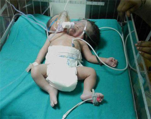 印度母亲产下连体双头婴