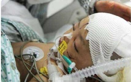 16岁男生遭暴打掌骨骨折掌心5个烟头烫伤,太残忍!
