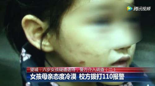 6岁女童遭母亲虐打  浑身是伤!