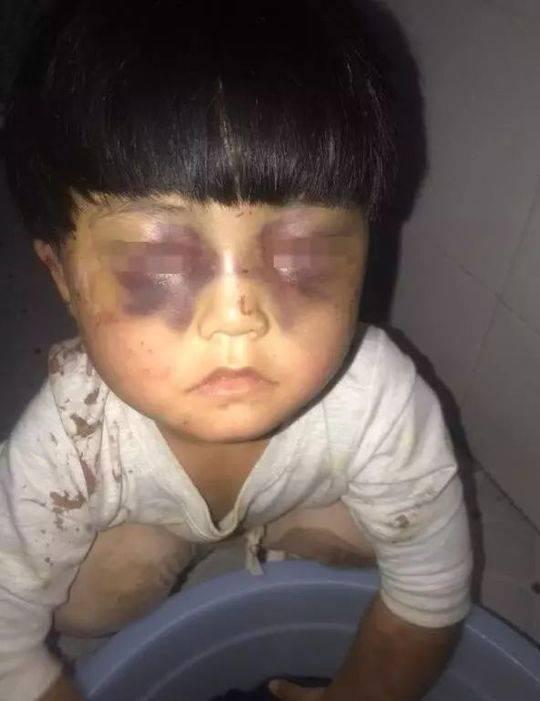 4岁女童疑遭虐待 悲剧!